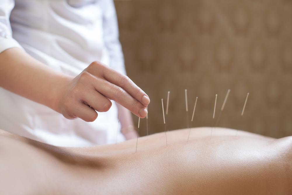 Kann Akupunktur Schmerzen lindern?