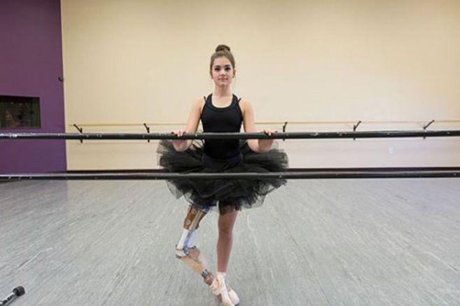 Handicap: Dieses Mädchen tanzt mit Beinprothese