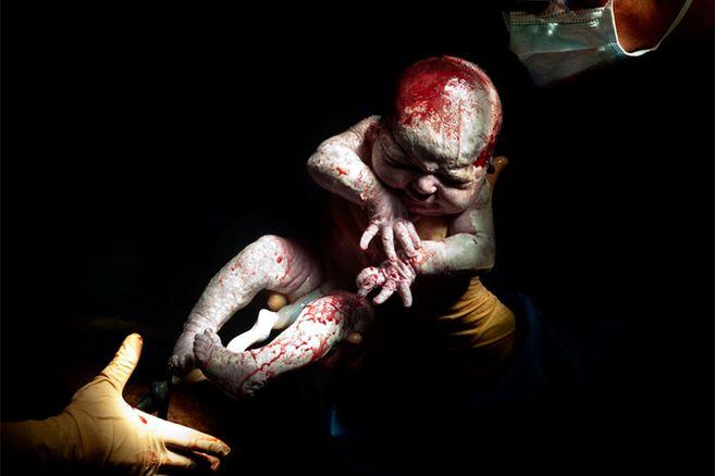 So sehen Babys nach einer Kaiserschnitt-Geburt aus