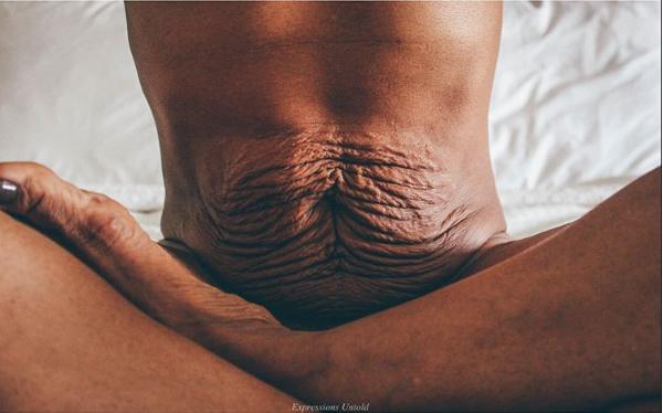 """Dieses ehrliche """"After-Baby-Bauch""""-Foto geht um die Welt"""