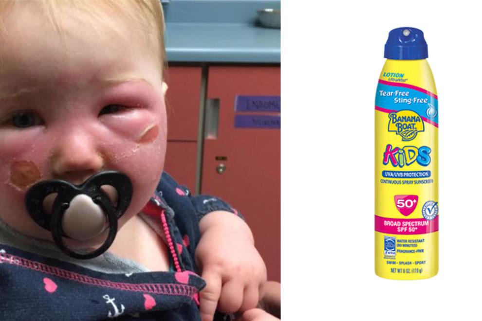 Achtung: Dieses Baby trägt Verbrennungen von Sonnencreme davon