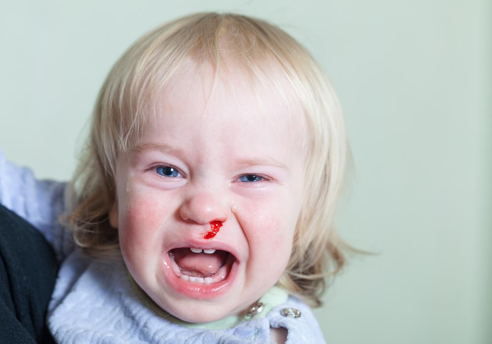 Was ist zu tun, wenn mein Kind Nasenbluten hat? #missMUMsos