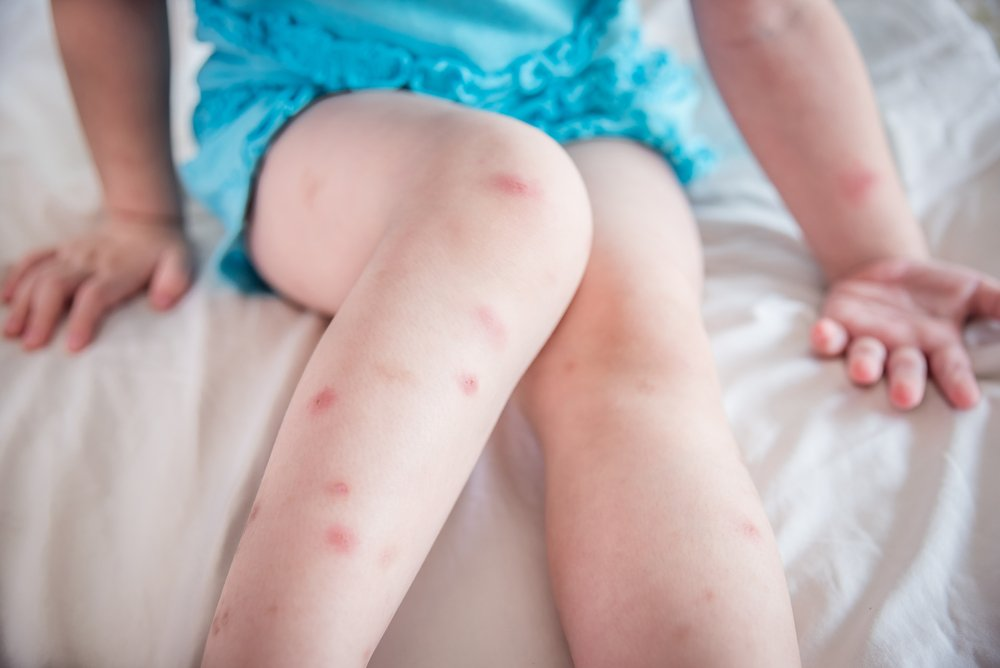 Was ist zu tun, wenn mein Kind eine allergische Reaktion hat? #missMUMsos