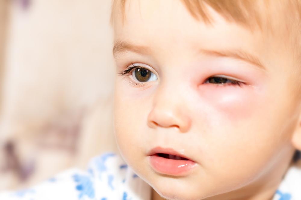Was ist zu tun, wenn mein Kind sich am Auge verletzt? #missMUMsos