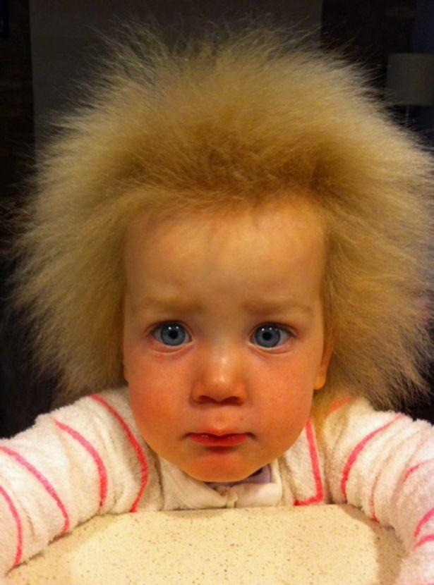 Unkämmbare Haare: Dieses Mädchen leidet unter dem ...