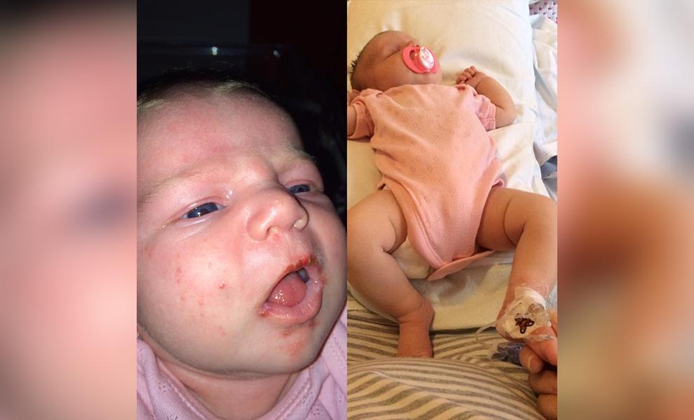 Unheimlich: Baby wäre durch fremden Kuss fast gestorben