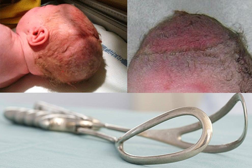 Risiken einer Geburt mit Zange oder Saugglocke
