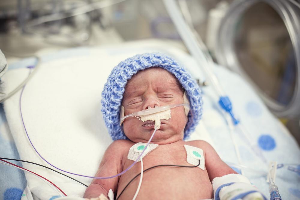 So beeinflusst die Hautfarbe eines Kindes die Behandlung auf der Neugeborenenstation