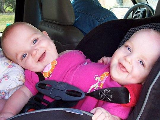 Happy End: Diese siamesischen Zwillinge leben heute ein normales Leben