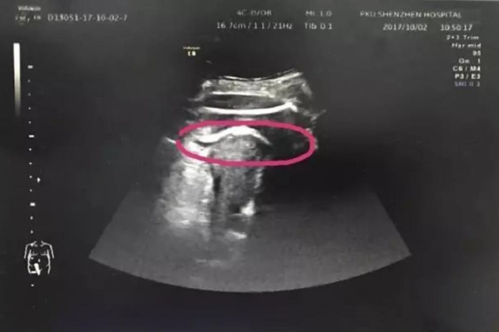 NOT OP: Baby tritt Loch in die Gebärmutter