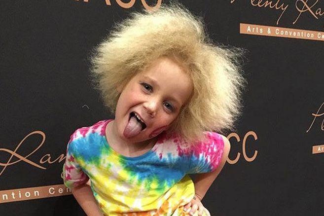 Außergewöhnlich: Das Mädchen mit den unkämmbaren Haaren