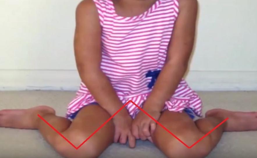 Darum solltest du dein Kind sofort daran hindern, wenn es in dieser Position sitzt