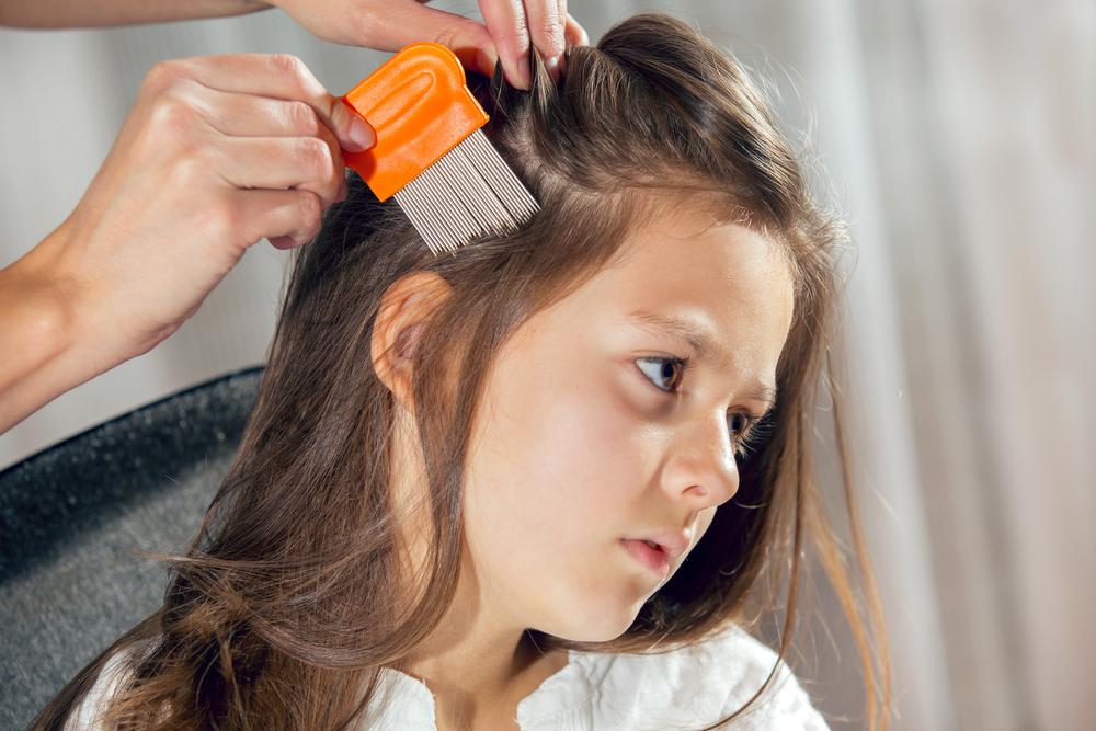 Was ihr über Kopfläuse wissen solltet und wie ihr sie loswerdet
