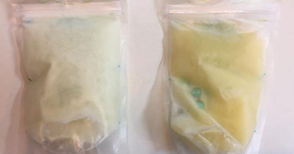 Grippewelle: Dieses Vorher-Nachher-Foto beweist, was für eine Wunderwaffe Muttermilch ist