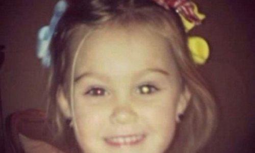 Glück: Eine Mutter postet dieses Foto und rettet ihrer Tochter das Augenlicht