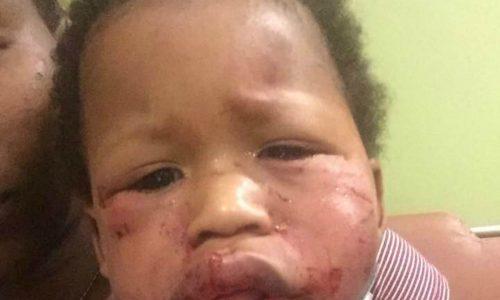 Dieser Einjährige wurde in den Krippe brutal geschlagen