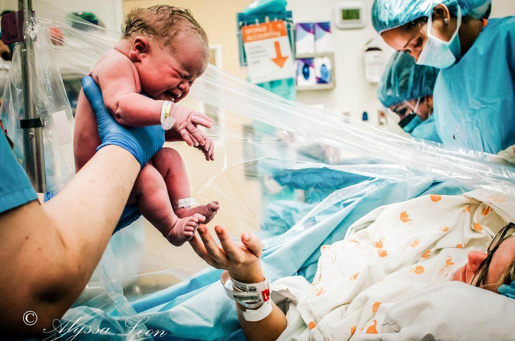 Die absolut schönsten Fotos von Kaiserschnitt-Geburten