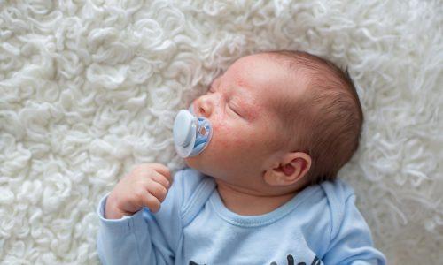 Babys erste Pickel – Die Neugeborenenakne