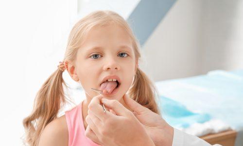 Sprechstörungen bei Kindern