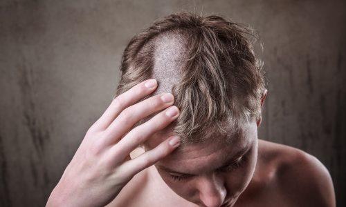 Bruder rasiert sich und seinen Geschwistern die Haare ab