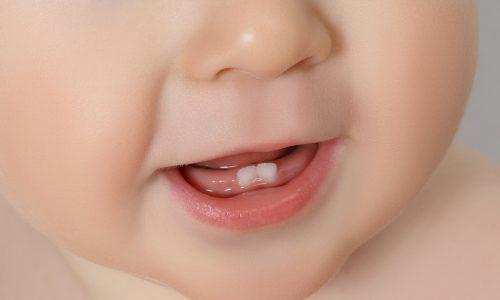 Zahnen – wann hat der Spuk endlich ein Ende?